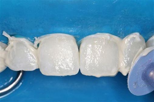 Microabrasão associada ao clareamento dental no tratamento da hipoplasia de esmalte