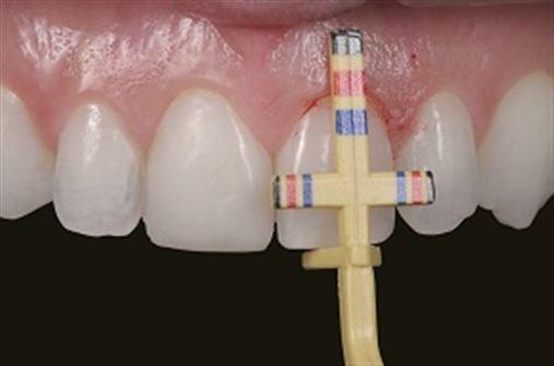Coluna Sakamoto: Integração entre cirurgia plástica periodontal e Odontologia Restauradora em reabilitação estética com resinas compostas – parte 1
