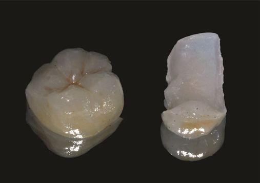 Desadaptação marginal de infraestruturas de próteses dentossuportadas: revisão de literatura