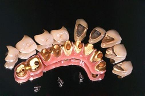 O uso de gengiva artificial para melhorar a estética de dentes naturais e implantes