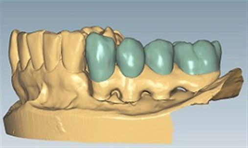 Uso do CAD-CAM no tratamento cirúrgico e protético de ameloblastoma mandibular – relato de caso