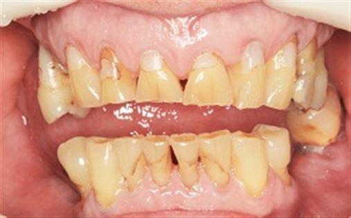 Determinantes de um planejamento em reabilitação oral