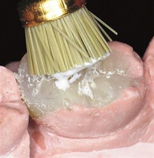 Resina composta indireta polimerizada adicionalmente como alternativa restauradora posterior – relato de caso