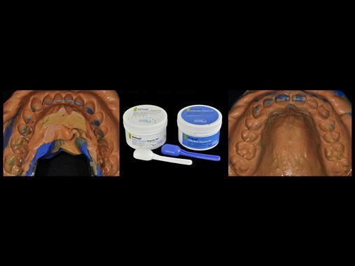 Refluxo gastroesofágico e desgaste dental – relato de caso