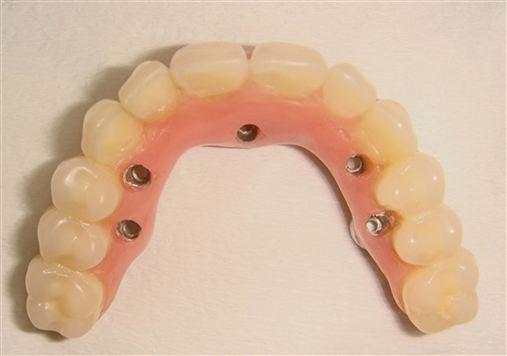 Reabilitação de maxilas atróficas com implantes zigomáticos em carga imediata: estudo retrospectivo de 22 casos.
