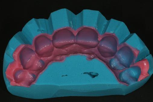 Planejamento e execução de laminados cerâmicos em um caso de fluorose dentária e agenesia de incisivos laterais superiores – relato de caso