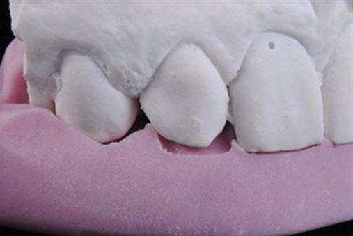 Fragmentos cerâmicos para fechamento de diastemas – parte I