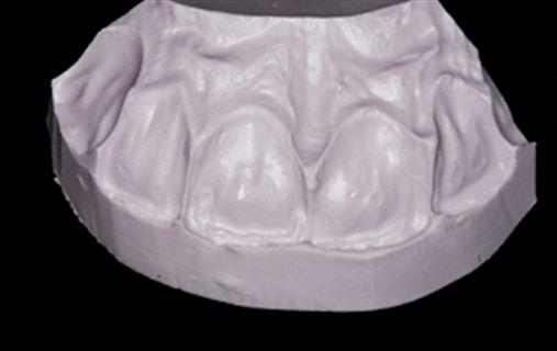 Fechamento de diastemas empregando restaurações adesivas diretas