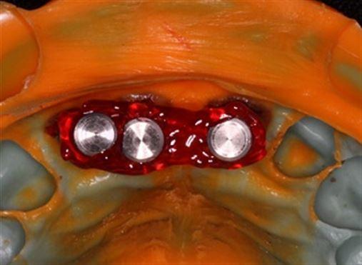 Estabilidade dos tecidos em implantes carregados imediatamente após exodontia de dentes contíguos em região estética