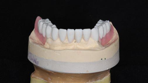 Placa de reposicionamento mandibular para restabelecimento da dimensão vertical de oclusão