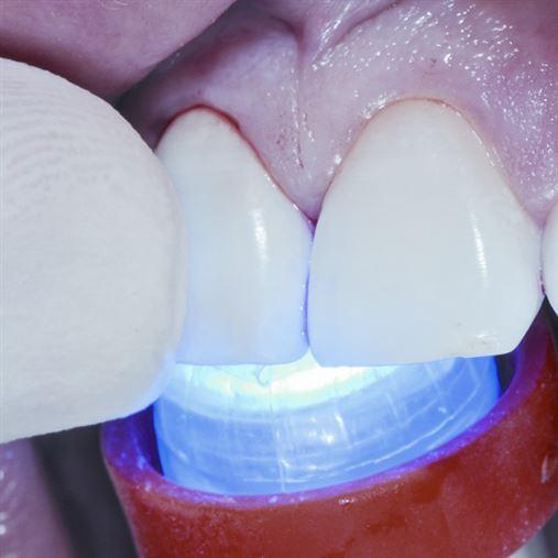 Estética imediata com implante Cone Morse – relato de caso
