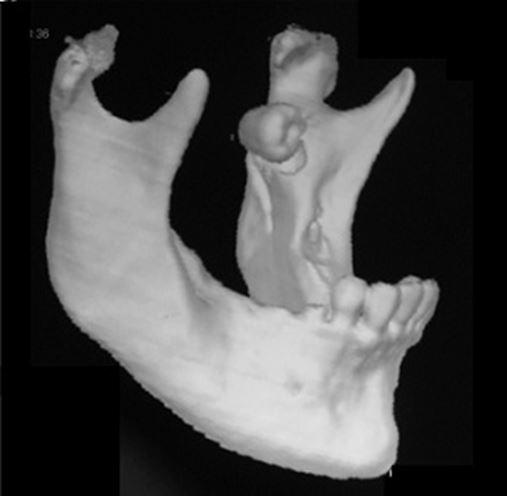 Remoção cirúrgica de dentes impactados em posições atípicas