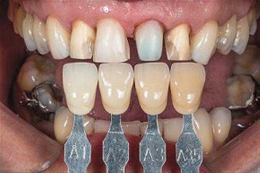 Integração Periodontia/Dentística na restauração estética anterior