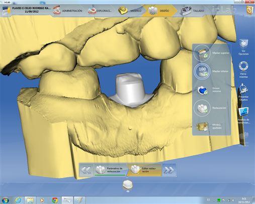 Possibilidades protéticas sobre implantes unitários na região posterior por meio do sistema CAD/CAM CEREC-SIRONA (softwares 3.8, 4.0 e 4.2)