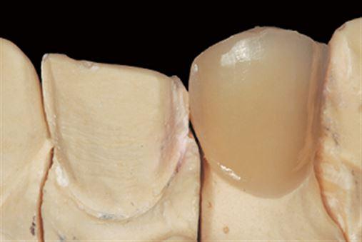 Reabilitação estética anterior igualando substratos distintos – relato de caso