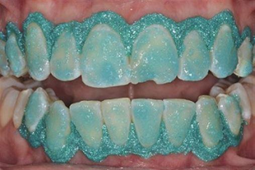 Reabilitação estética de dente fraturado – relato de caso