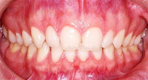 Protocolo de exame clínico auxiliar ao diagnóstico das lesões dentais não cariosas (LDNC)