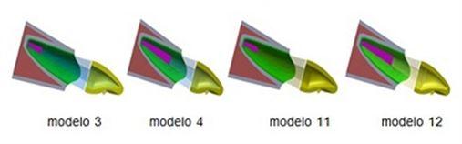 Avaliação tridimensional do risco a fratura de um incisivo central superior com presença de núcleo metálico fundido intrarradicular