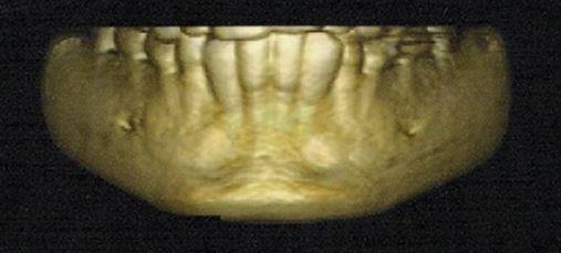 Utilização da tomografia computadorizada de feixe cônico no diagnóstico odontológico