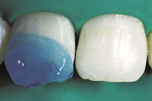 Tratamento restaurador estético de hipoplasia dental – relato de caso