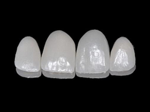 Associação de cerâmicas na reabilitação estética do sorriso – utilização de cerâmica reforçada por dissilicato de lítio e cerâmica feldspática