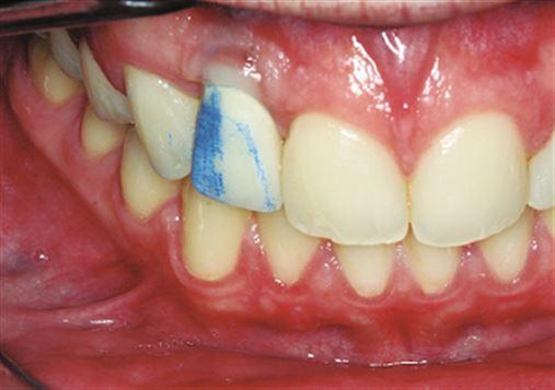 Procedimentos de ajuste e acabamento recomendados para restaurações em dentes anteriores