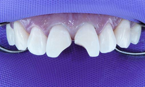 Solução conservadora para o restabelecimento do equilíbrio estético e funcional de dentes anteriores
