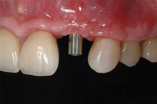 Enxerto ósseo onlay autógeno de área doadora intraoral: relato de caso.