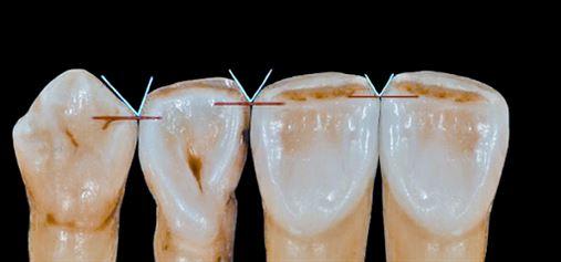 A dinâmica da composição dos dentes anteriores: ameias incisais
