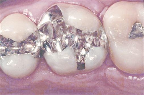 O que o cirurgião-dentista que prática a Odontologia deve saber a respeito do amálgama dentário