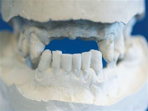 Técnica de instalação de implantes inclinados na reabilitação de maxila atrófica