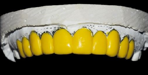 Cirurgia periodontal estética em dentes anteriores