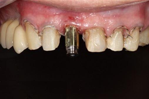 Tratamento Clínico para a reabilitação oral utilizando dois materiais cerâmicos para CAD-CAM