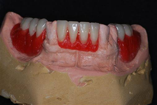 Planejamento reverso em próteses totais implanto suportadas com carga imediata