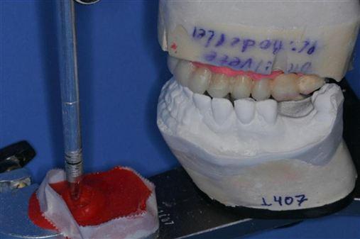 Porque e como reproduzir a guia anterior em prótese sobre implantes em ambiente laboratorial – técnica da personalização da mesa incisal em ASA