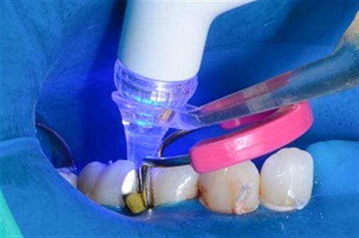 Restauração de Classe II em resina composta – da anatomia ao ponto de contato ideais