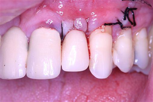 Implante imediato instalado em alvéolo com defeito ósseo vestibular.