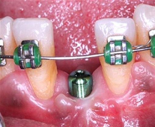 Otimização de resultados através da colocação do Implante Dentário e associação de osso liofilizado e membranareabsorvível – relato de caso