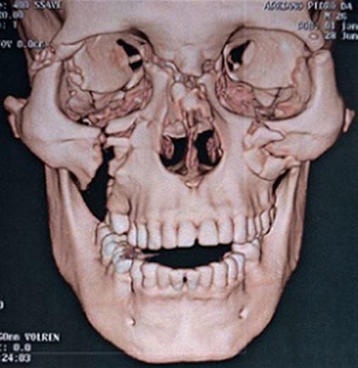 Intubação submentoniana nas fraturas complexas do terço médio facial – relato de caso