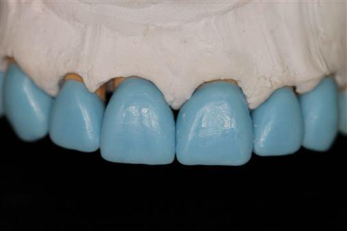 Reabilitação oral total com materiais adesivos: construindo um protocolo previsível.