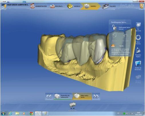 """Uma nova possibilidade técnica para confecção de uma prótese fixa de três elementos – Processo """"Multi layer"""" do software """"in Lab"""" 4.0 do sistema CEREC da SIRONA"""