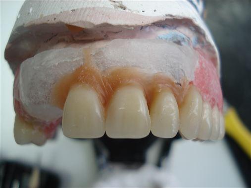 Cera para fixação de dentes