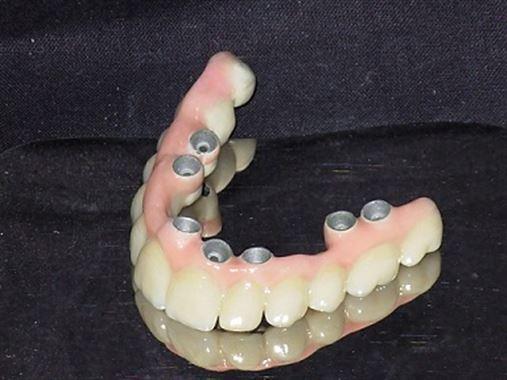Implante imediato e carga imediata em paciente periodontal – relato de caso com acompanhamento de seis anos