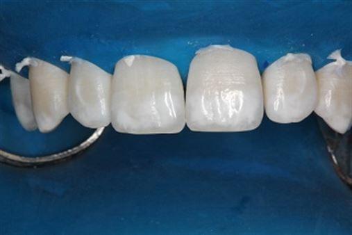 Associação de microabrasão e clareamento dental caseiro em paciente com fluorose – relato de caso