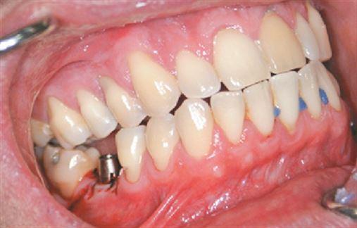 Implante cone morse de carga imediata com coroa CAD-CAM – relato de caso