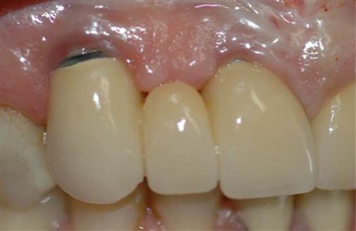 Solução estética para prótese sobre implante.