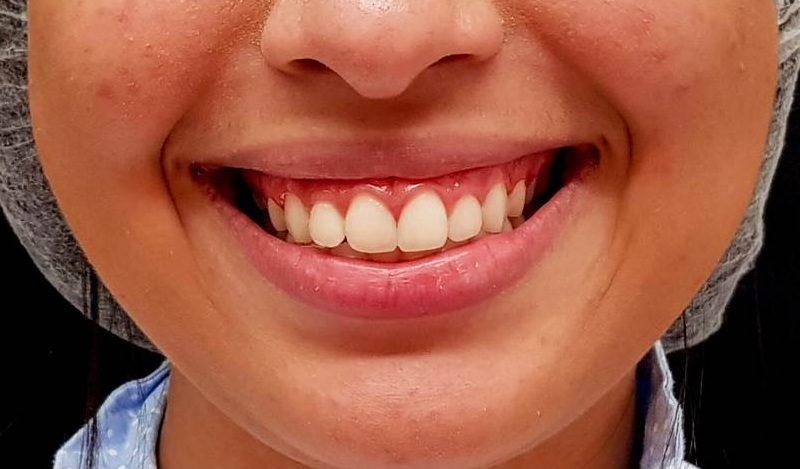 TOXINA BOTULÍNICA: alternativa terapêutica no tratamento do sorriso gengival de etiologia muscular