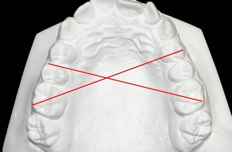 Influência do aparelho Powerscope na posição espacial das cabeças da mandíbula nas fossas mandibulares