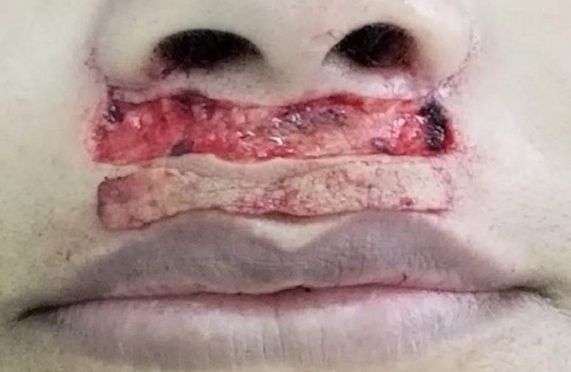 LIP LIFT: cirurgia funcional para maior exposição dos dentes e lábios superiores – relato de caso