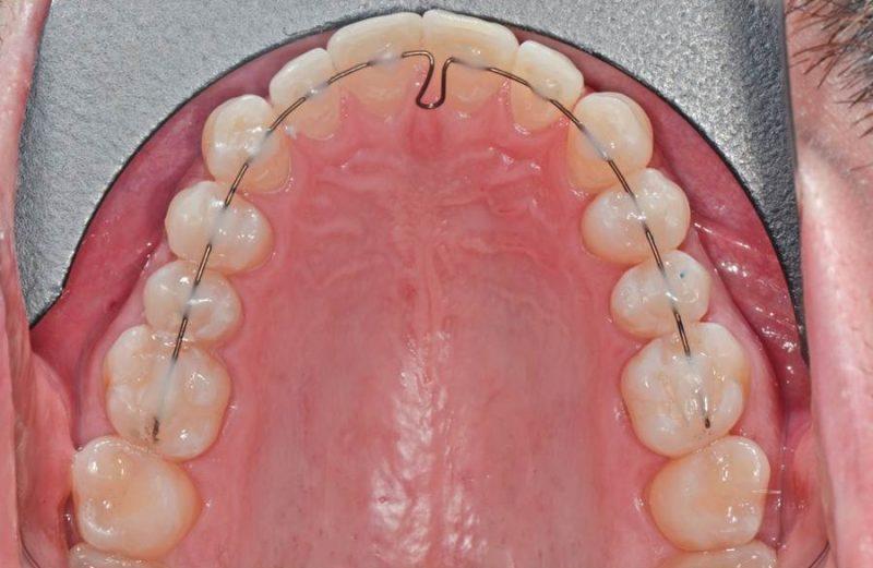 Coluna Ortodontia e Ideias – 3D-BOT – uma nova alternativa para tratamentos estéticos, confortáveis e previsíveis – relatos de casos clínicos